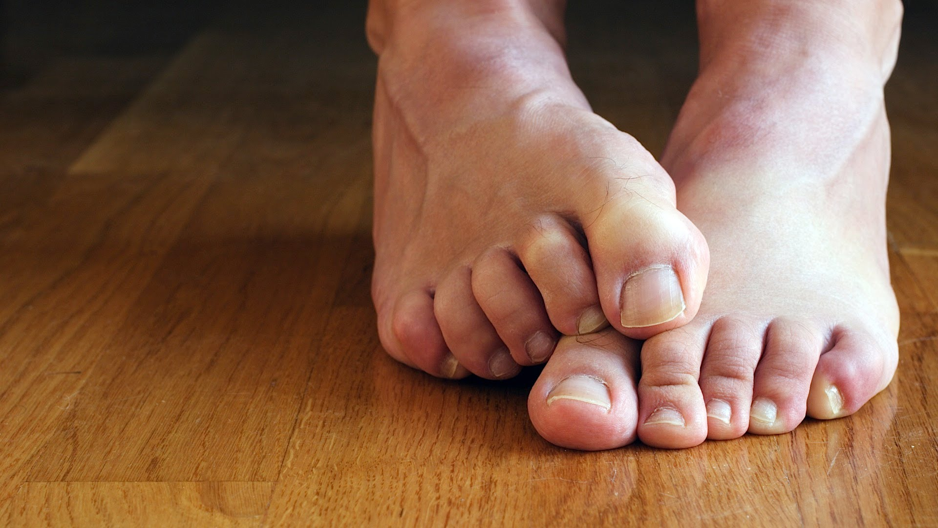 Claw Toes Could Be a Symptom of Causal Diabetes or Neurological Problem: Doctors