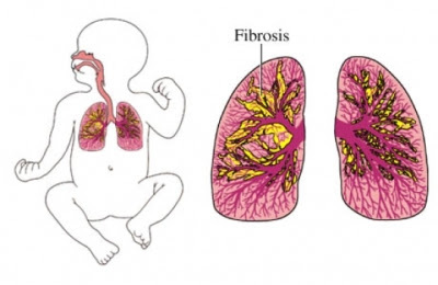 Bronchopulmonary Dysplasia Treatment Market